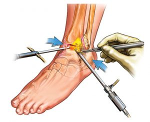 Arthroscopy-Ankle